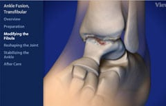 animated orthopedic and sports medicine procedures